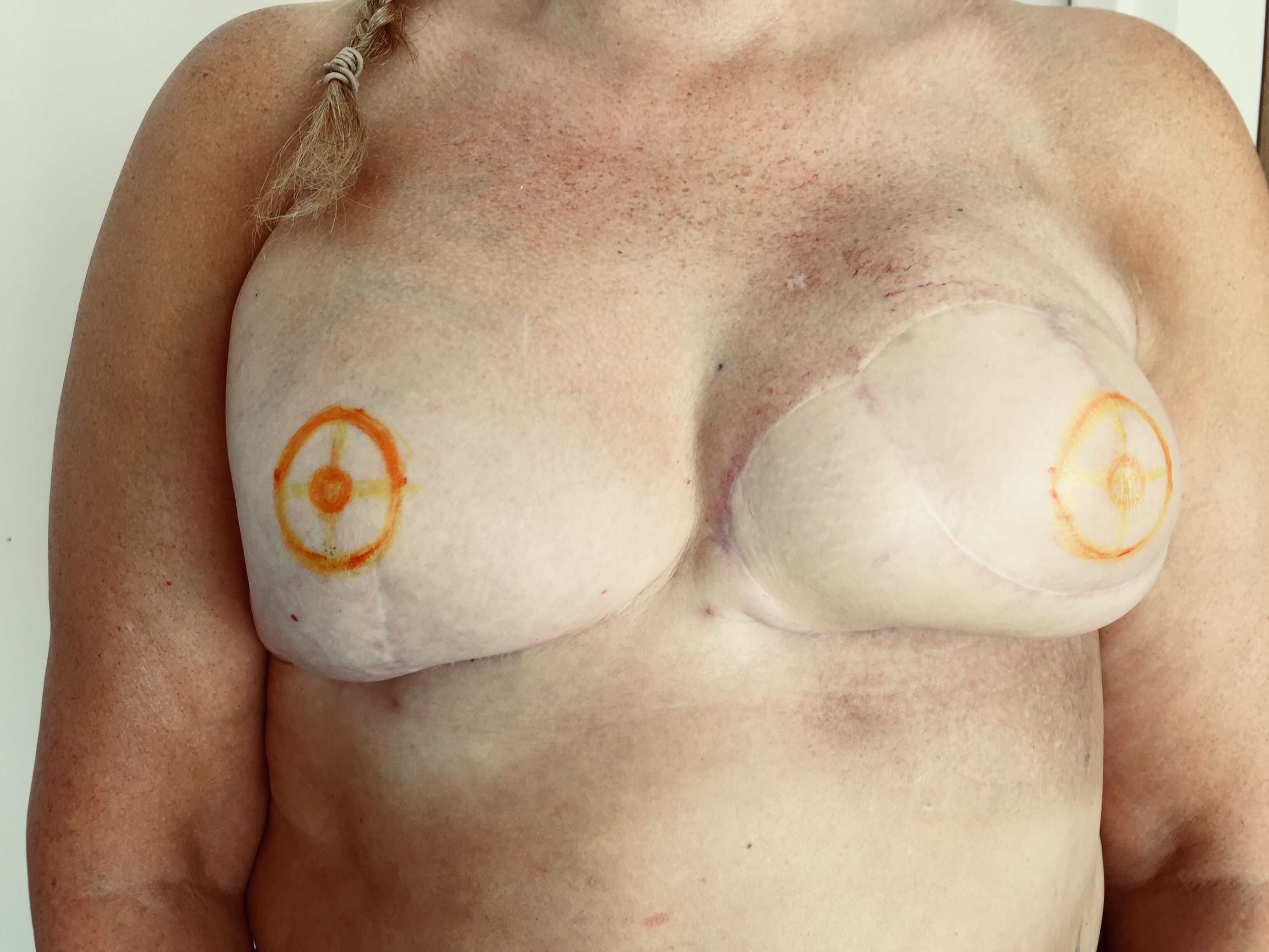 Mastectomy Tattoo by Helen Aldous