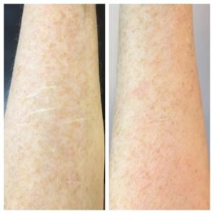 self harm scar revision