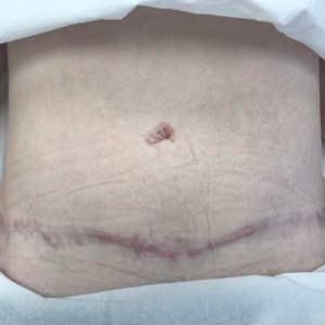Scar from DIEP Flap Breast Reconstruction