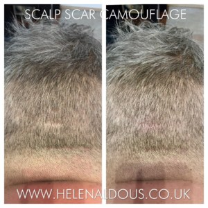 Scalp Scar Camouflage Hair Tattoo