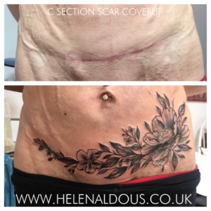 C-Section Scar Cover Up Tattoo