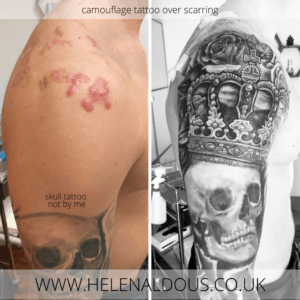 Camouflage Tattoo Over Acne Scarring