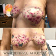 Mastectomy Tattoo Covering Surgical Scars