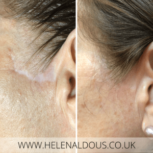 Healed Scar Camouflage Tattoo of Facelift Scar