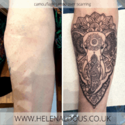 scar cover up tattoo