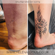 Scar Cover Up Tattoo on Ankle
