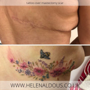floral tattoo over mastectomy scar