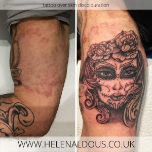 Camouflage Tattoo over Skin Discolouration